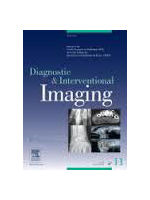 Diagnostic and interventional imaging