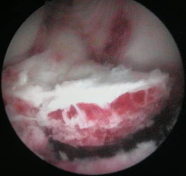 réinsertion des épines tibiales sous arthroscopie
