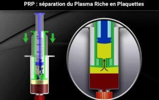 PRP séparation