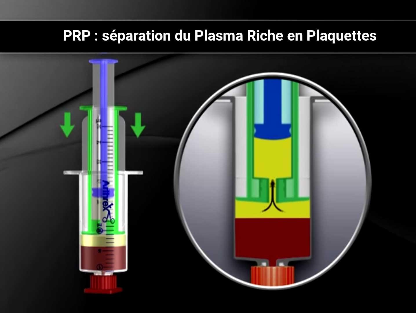 'injections de Plasma Riche en Plaquettes