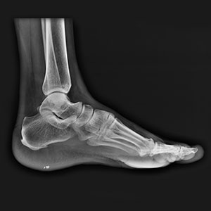 radiographie du pied