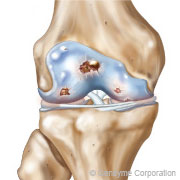 arthrose du genou de grade 3