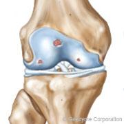 arthrose du genou de grade 2