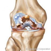 arthrose du genou de grade 4