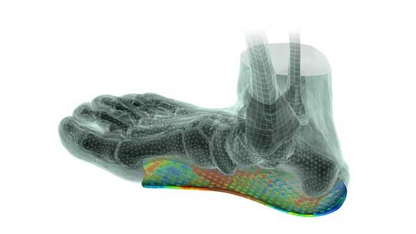 impression de semelles orthopédiques en 3D