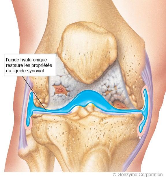 principes de la viscosupplémentation du genou