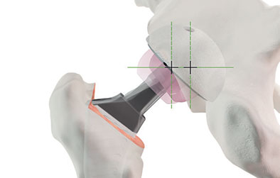 Prothèse totale de hanche sur mesure – technique mini-invasive ASIA