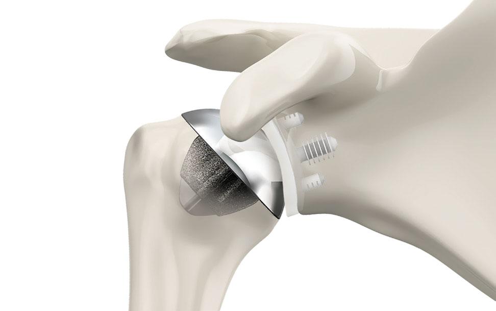 prothèse épaule Simplicity