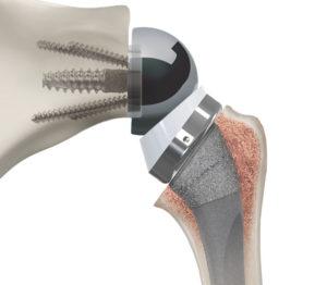 prothèse inversée