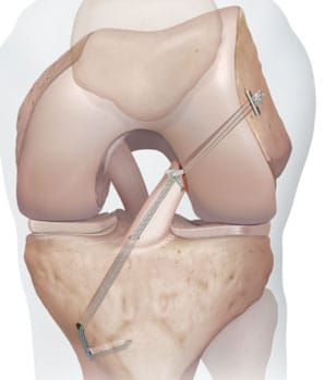 Le ligament croisé d'origine peut être renforcé par une bandelette de renfort InternalBrace