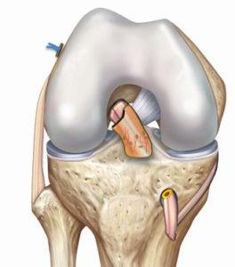 Avec la technique LCA SAMBBA ( Single Antero Medial Bundle Biological Augment) on prélève le également le tendon du muscle demi-tendineux (DT) mais, à la différence de la technique DT4, le tendon n'est pas détaché du tibia.
