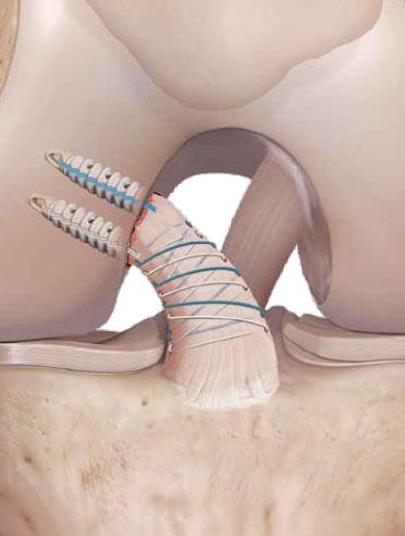 Une nouvelle technique chirurgicale pour réparer un ligament croisé antérieur rompu.