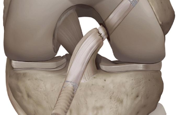De nouvelles techniques chirurgicales de réparation du ligament croisé antérieur