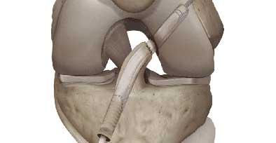technique SAMBBA : reconstruction du ligament croisé antérieur avec conservation du LCA natif