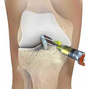 rupture partielle du ligament croisé antérieur : injection de PRP