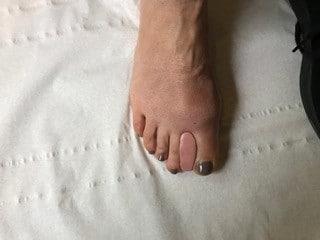 Une orthoplastie en silicone est réalisée le jour même par un podologue spécialisé