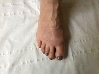 consultation à J+15 pour contrôler la bonne cicatrisation de la peau.
