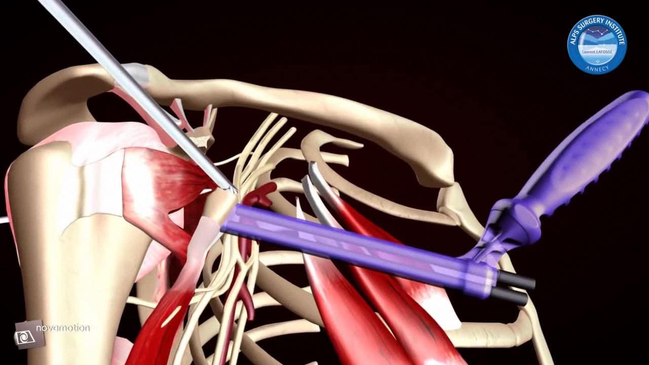 Butée d'épaule sous arthroscopie Latarjet.