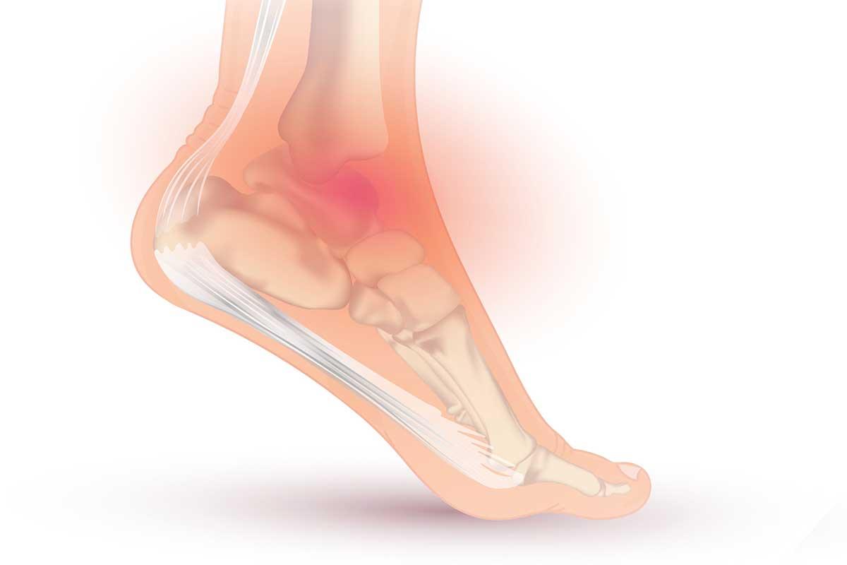 L'instabilité chronique de cheville correspond à des sensations de dérobements répétés de votre cheville en rapport avec un relâchement (laxité) de ses ligaments externes.