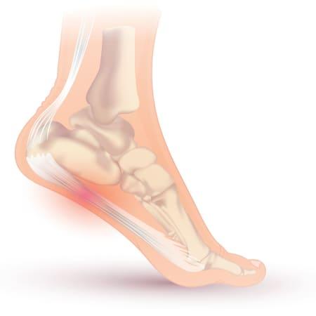Le fascia ou aponévrose plantaire correspond à une membrane tendue entre l'os du talon (calcanéum) et les orteils. Cette aponévrose permet le maintien de la voûte plantaire.