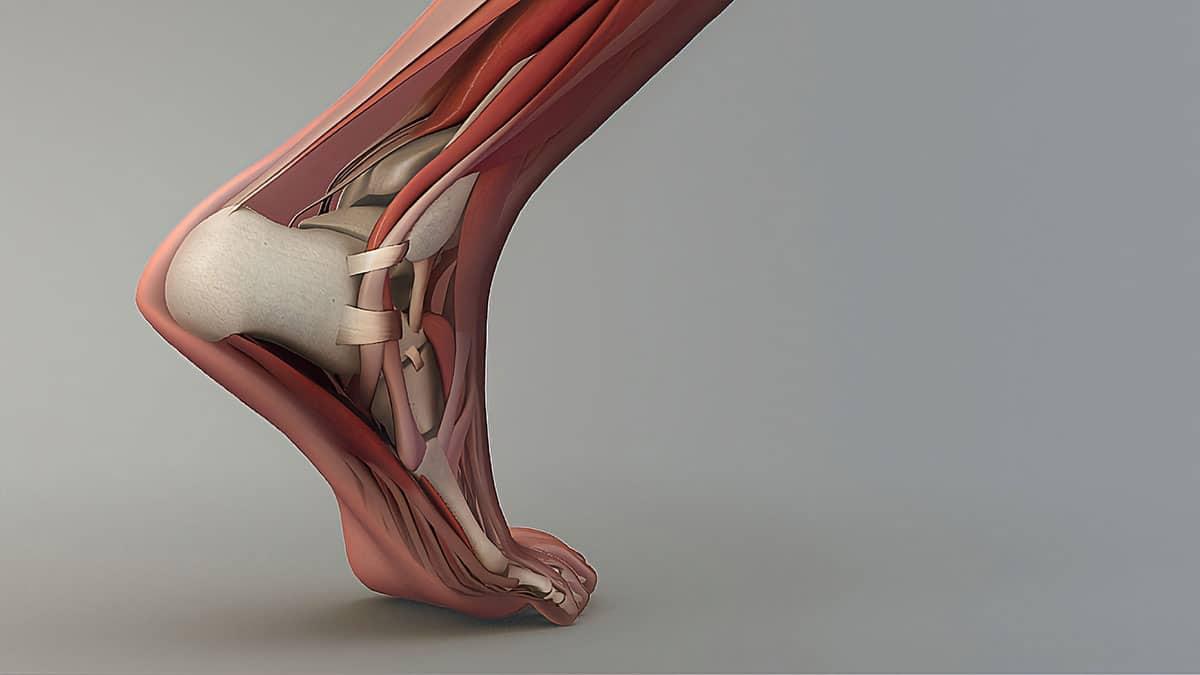 La maladie de Haglund est une inflammation du tendon d'Achille au contact de l'os du talon.