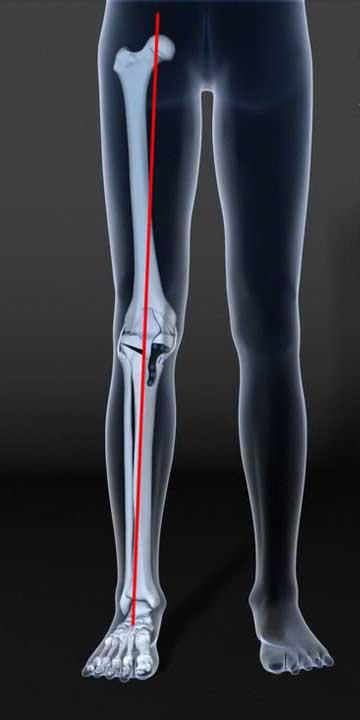 genou après ostéotomie de valgisation