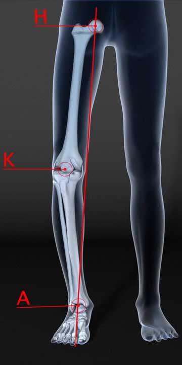 Genu varum (jambes arquées) : angle HKA inférieur à 180°.