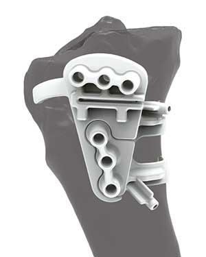 ostéotomie tibiale de valgisation : guide de coupe sur mesure
