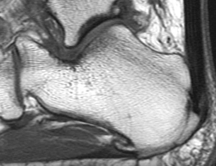 Maladie de Haglund : IRM pour rechercher une tendinopathie d'Achille