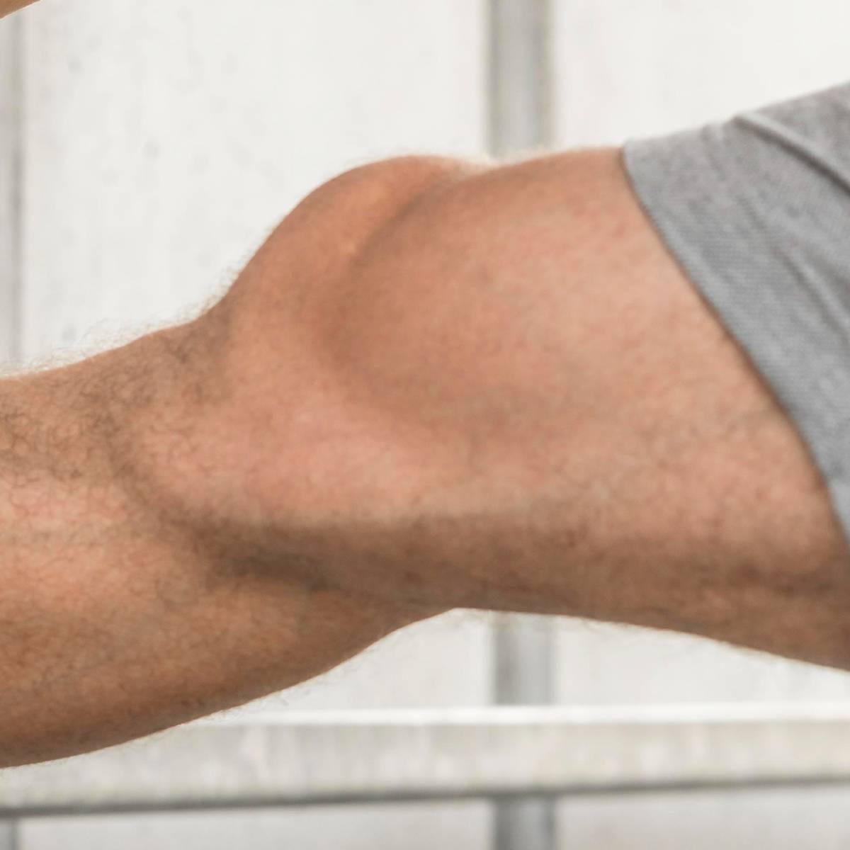 les muscles stabilisent le genou
