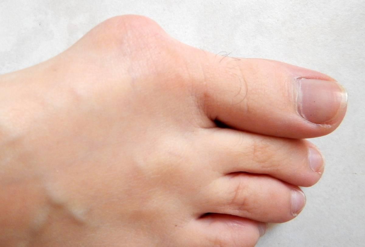 L'hallux valgus se caractérise par une bosse appelée oignon à la base du gros orteil.