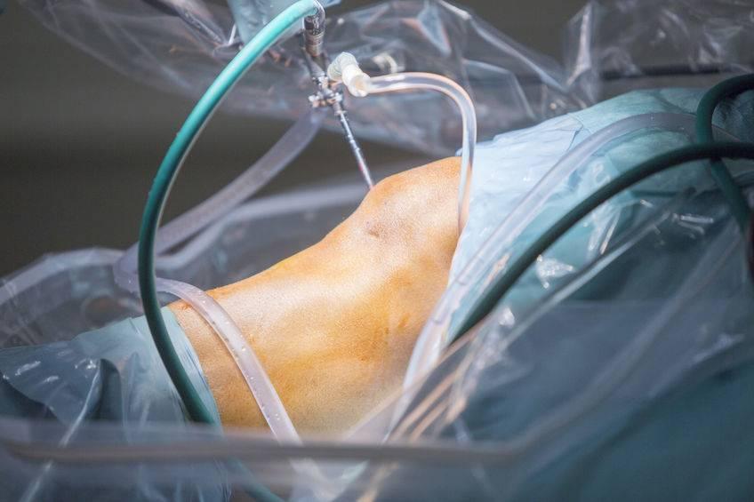 chirurgie arthroscopique