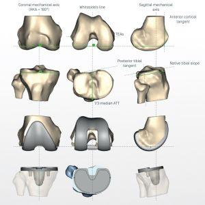 planification en 3D de l'implant et des guides de coupe personnalisés
